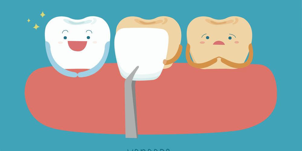 veneers and teeth illustration